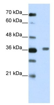 Western blot - BTB/POZ domain containing protein 6 antibody (ab66788)