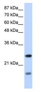Western blot - SRP14 antibody (ab66896)