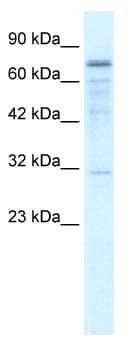 Western blot - TRM1 antibody (ab66902)