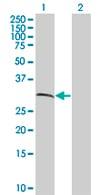 Western blot - BCAT1 antibody (ab67123)