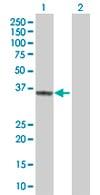 Western blot - TREX1 antibody (ab67192)