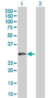 Western blot - TPD52 antibody (ab67193)