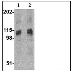 Western blot - SAPAP3 antibody (ab67224)
