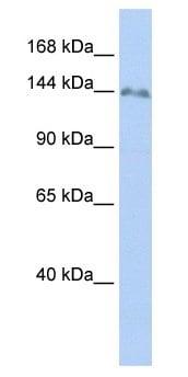 Western blot - ZNF643 antibody (ab67554)