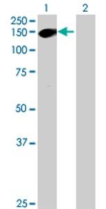 Western blot - DZIP1 antibody (ab68568)