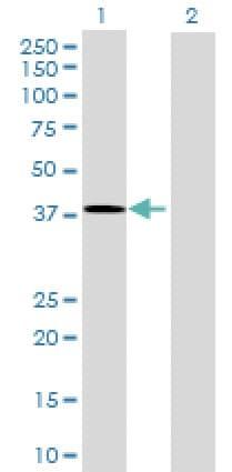 Western blot - Tsukushin antibody (ab68710)