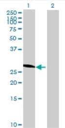 Western blot - CYP3A43 antibody (ab68754)