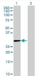 Western blot - MBNL3 antibody (ab68759)