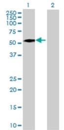 Western blot - ALDH8A1 antibody (ab68773)
