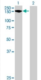 Western blot - TEX2 antibody (ab69071)