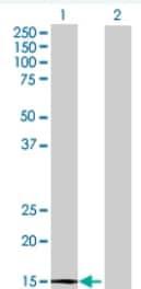 Western blot - THEM2 antibody (ab69072)