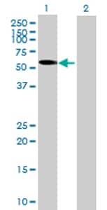 Western blot - GHDC antibody (ab69269)