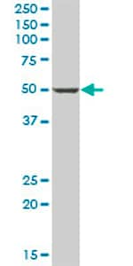 Western blot - PANK1 antibody (ab69354)