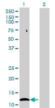 Western blot - FLJ37478 antibody (ab69464)