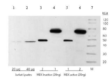 Western blot - MEK1 antibody [3D9] (ab69502)