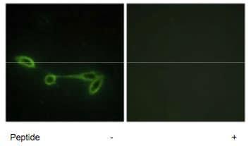 Immunocytochemistry/ Immunofluorescence - FUK antibody (ab69555)