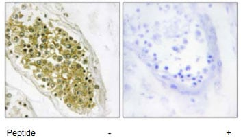 Immunohistochemistry (Formalin/PFA-fixed paraffin-embedded sections) - HIPK4 antibody (ab69565)