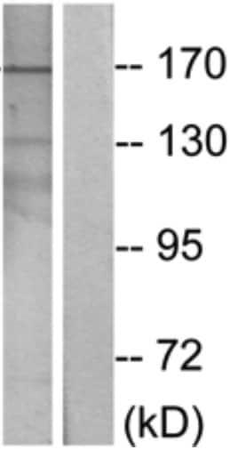 Western blot - ARID1B antibody (ab69571)