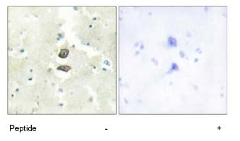 Immunohistochemistry (Formalin/PFA-fixed paraffin-embedded sections) - BRI3BP antibody (ab69578)