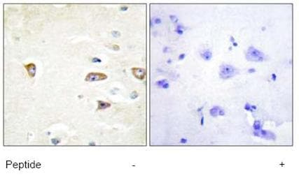 Immunohistochemistry (Formalin/PFA-fixed paraffin-embedded sections) - CDC42 Binding Protein Kinase Beta antibody (ab69589)
