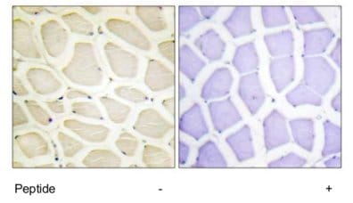 Immunohistochemistry (Formalin/PFA-fixed paraffin-embedded sections) - COL20A1 antibody (ab69612)