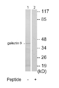 Western blot - galectin 9 antibody (ab69630)