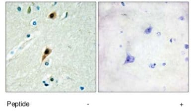 Immunohistochemistry (Formalin/PFA-fixed paraffin-embedded sections) - RBM5  antibody (ab69770)