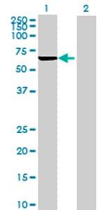Western blot - PRPF4 antibody (ab69878)