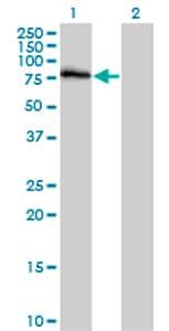 Western blot - Dyrk1B antibody (ab69879)