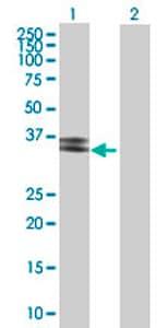 Western blot - PPT2 antibody (ab69882)