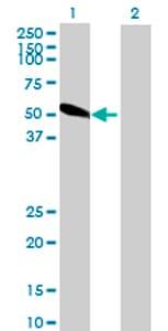 Western blot - SLC22A8 antibody (ab69883)