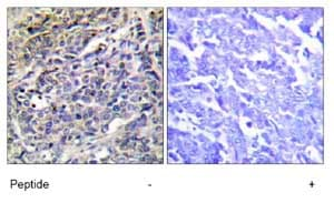 Immunohistochemistry (Formalin/PFA-fixed paraffin-embedded sections) - Granzyme K antibody (ab69884)
