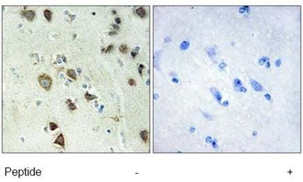 Immunohistochemistry (Formalin/PFA-fixed paraffin-embedded sections) - RSK4 antibody (ab69929)