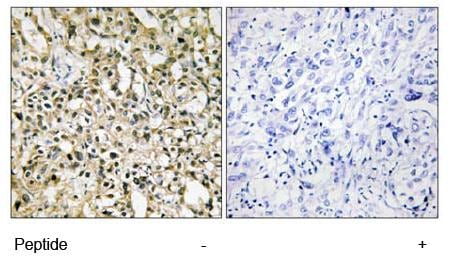 Immunohistochemistry (Formalin/PFA-fixed paraffin-embedded sections) - c-Myc antibody (ab69987)