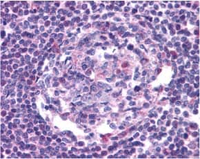 Immunohistochemistry (Formalin/PFA-fixed paraffin-embedded sections) - CCR5 antibody (ab7346)