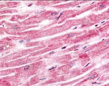 Immunohistochemistry (Formalin/PFA-fixed paraffin-embedded sections) - Sprouty 4 antibody (ab7513)