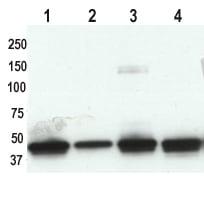 Western blot - Cytokeratin 19 antibody [A53-B/A2] (ab7754)