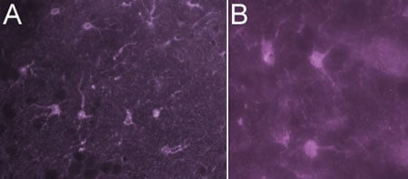 Immunohistochemistry (PFA perfusion fixed frozen sections) - S100 antibody [B32.1] - Astrocyte Marker (ab7852)