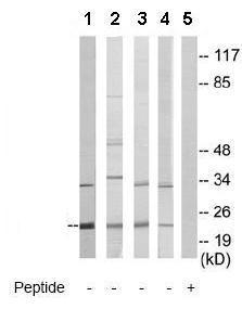 Western blot - CSRP1 antibody (ab70010)