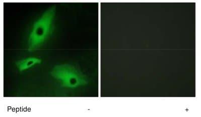 Immunocytochemistry/ Immunofluorescence - LTBR antibody (ab70063)