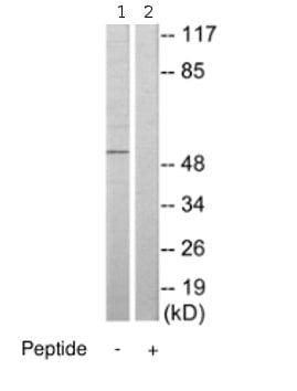 Western blot - CSK antibody (ab70065)