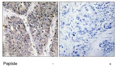 Immunohistochemistry (Formalin/PFA-fixed paraffin-embedded sections) - NBL1 antibody (ab70066)