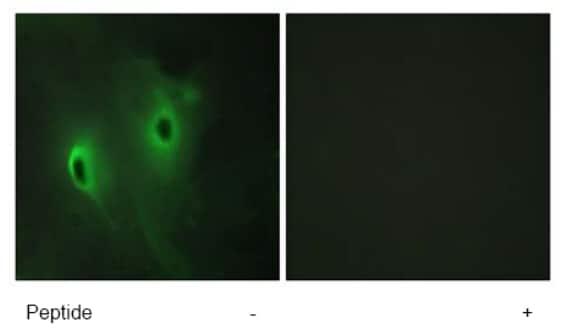 Immunocytochemistry/ Immunofluorescence - DUSP9 antibody (ab70129)