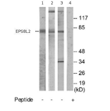 Western blot - EPS8L2 antibody (ab70179)