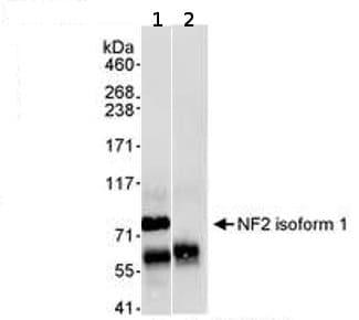 Immunoprecipitation - NF2 / Merlin antibody (ab70232)