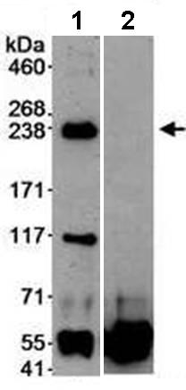 Immunoprecipitation - DOCK9 antibody (ab70272)