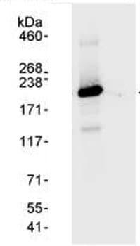Immunoprecipitation - hCAP-D3 antibody (ab70349)