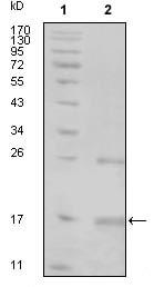 Western blot - Tnk1 antibody [3F11H6] (ab70402)