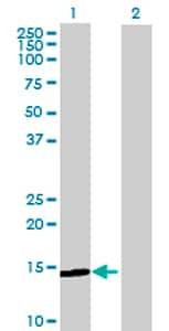 Western blot - MGC16703 antibody (ab70438)