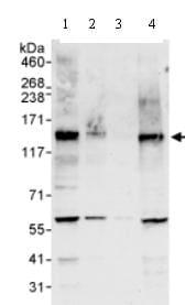 Western blot - MAML1 antibody (ab70486)